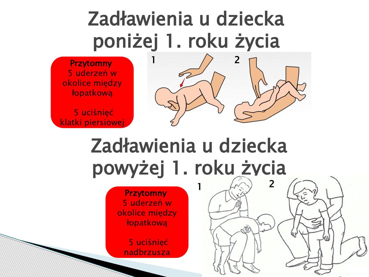 plansza, zadławienia u dzieci. Pierwsza pomoc w języku migowym